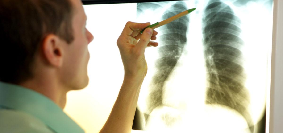 US Doctors Show Black Lung Bias